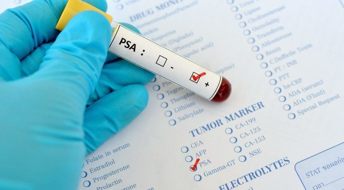 Blood sample with PSA (Prostate-specific antigen) positive