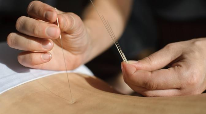 Acupuncture: From quack science to proven medical treatment