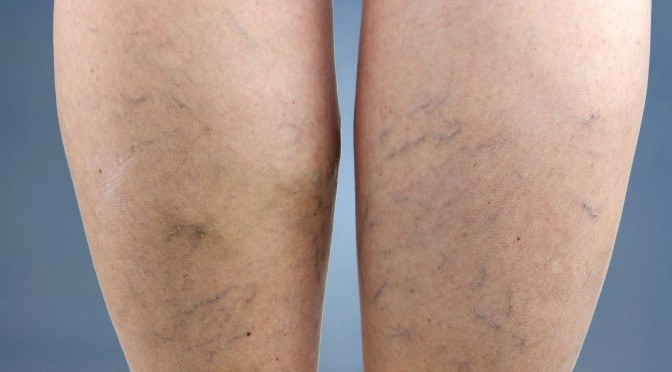 10 Natural Remedies to Eliminate Varicose Veins