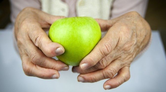 5 Proven Ways to Prevent and Treat Arthritis