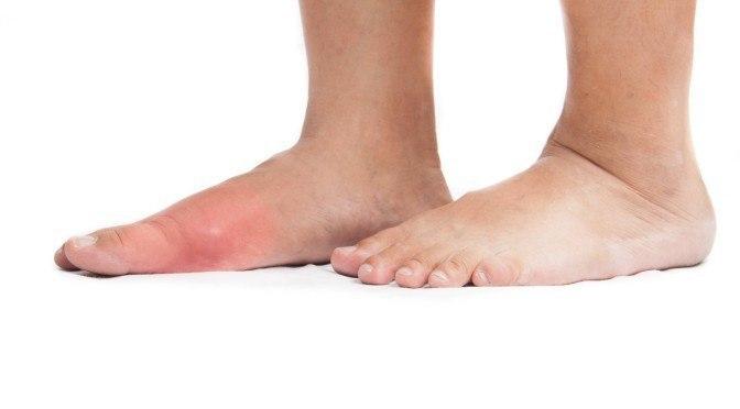 Beat Gout Naturally