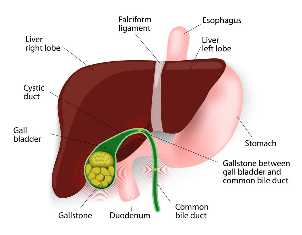 Remove Gallstones With The Liver/Gallbladder Flush