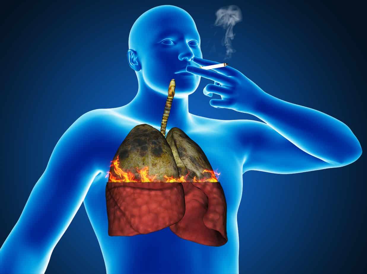 Как почистить легкие после многолетнего курения Быстрая очистка легких 29