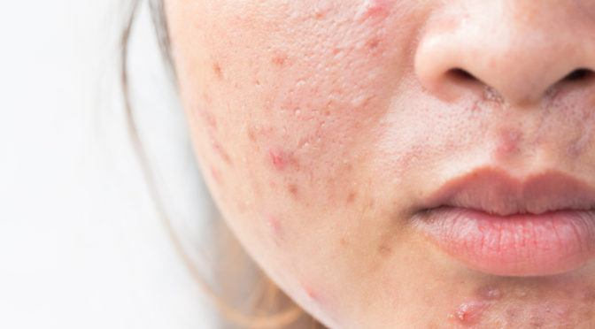 Face Mapping: What the Acne On Your Face Says About Your Health