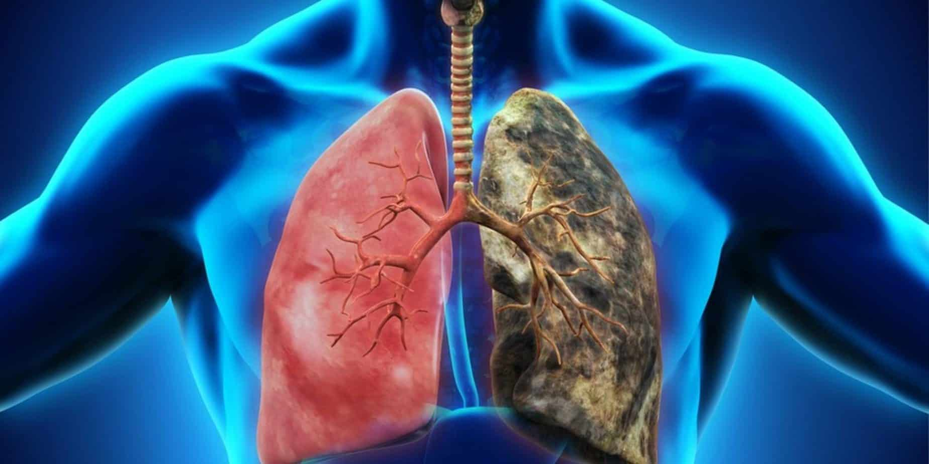 10 Ways To Detoxify Your Dirty Lungs – Healing the Body