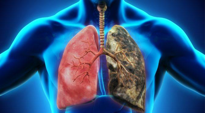 10 Ways To Detoxify Your Dirty Lungs